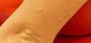 Problemy skórne w alergii